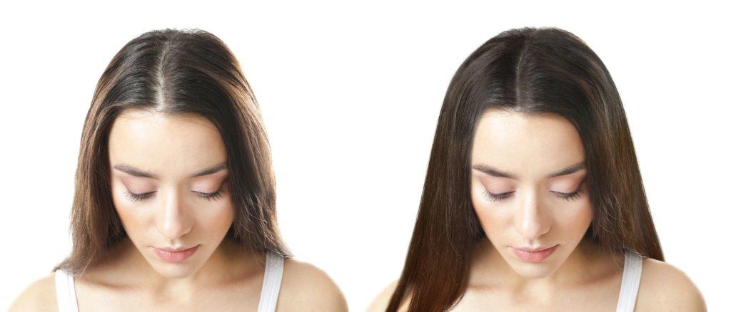 Haarverdichtung vorher nachher